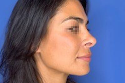 Rhinoplasty Gallery - Patient 13574730 - Image 4