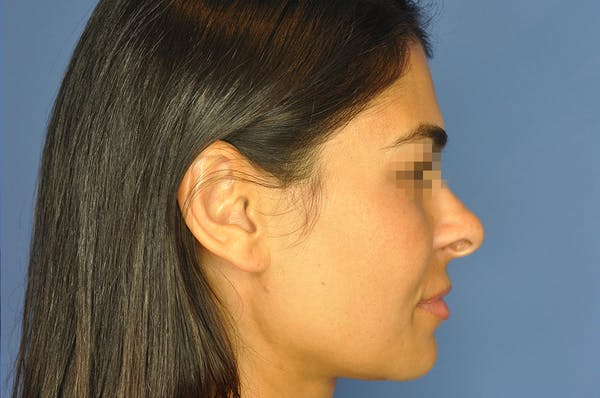 Rhinoplasty Gallery - Patient 13574730 - Image 5