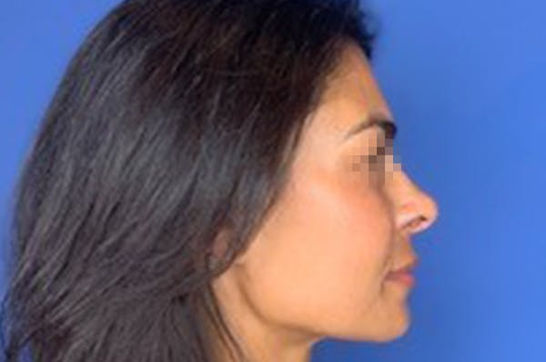 Rhinoplasty Gallery - Patient 13574730 - Image 6