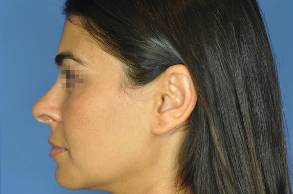 Rhinoplasty Gallery - Patient 13574730 - Image 7