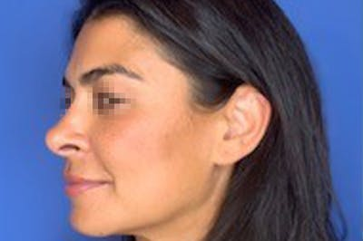 Rhinoplasty Gallery - Patient 13574730 - Image 8