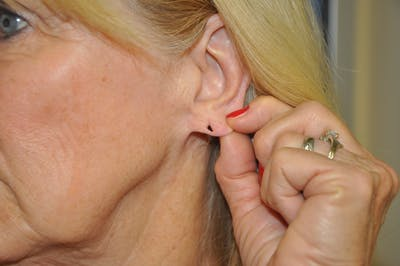 Earlobes Gallery - Patient 13574735 - Image 1