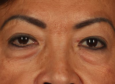 Blepharoplasty (Eyelid Surgery) Gallery - Patient 13574740 - Image 1