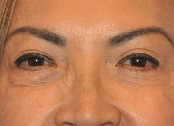 Blepharoplasty (Eyelid Surgery) Gallery - Patient 13574740 - Image 2