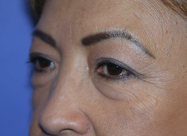 Blepharoplasty (Eyelid Surgery) Gallery - Patient 13574740 - Image 3