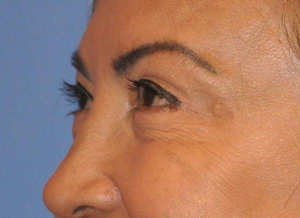 Blepharoplasty (Eyelid Surgery) Gallery - Patient 13574740 - Image 4