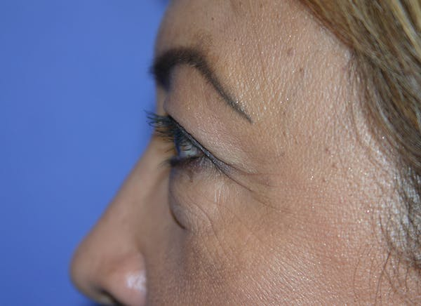 Blepharoplasty (Eyelid Surgery) Gallery - Patient 13574740 - Image 5