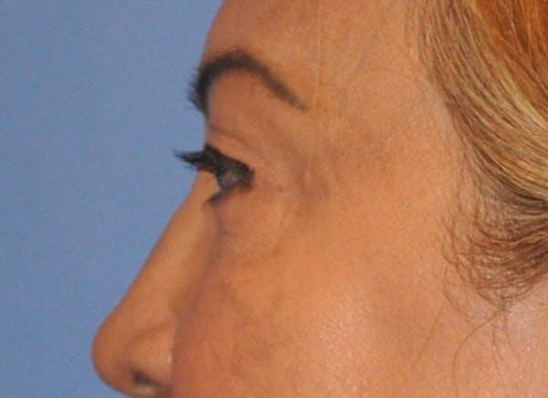 Blepharoplasty (Eyelid Surgery) Gallery - Patient 13574740 - Image 6