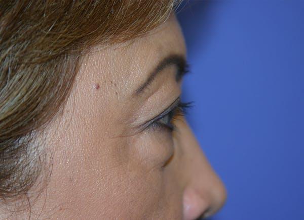 Blepharoplasty (Eyelid Surgery) Gallery - Patient 13574740 - Image 7