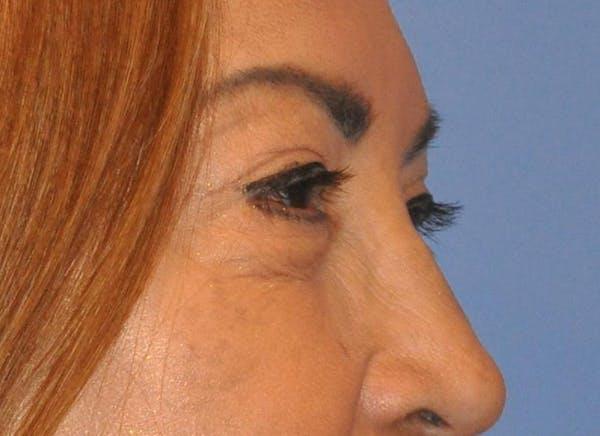 Blepharoplasty (Eyelid Surgery) Gallery - Patient 13574740 - Image 8