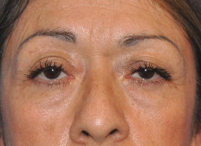 Blepharoplasty (Eyelid Surgery) Gallery - Patient 13574741 - Image 1