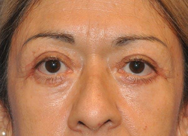 Blepharoplasty (Eyelid Surgery) Gallery - Patient 13574741 - Image 2