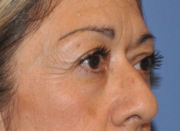 Blepharoplasty (Eyelid Surgery) Gallery - Patient 13574741 - Image 3