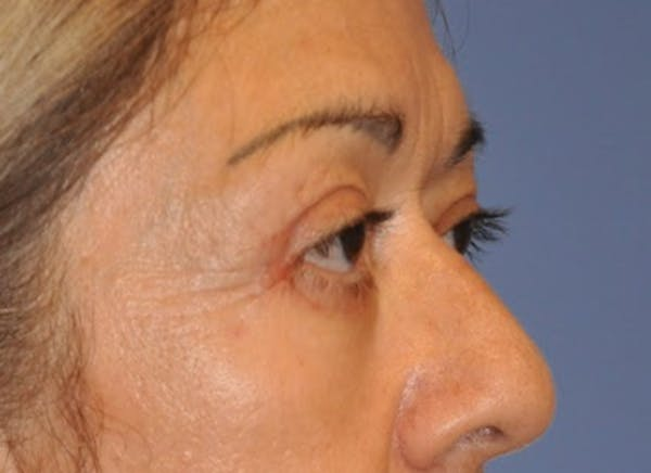 Blepharoplasty (Eyelid Surgery) Gallery - Patient 13574741 - Image 4