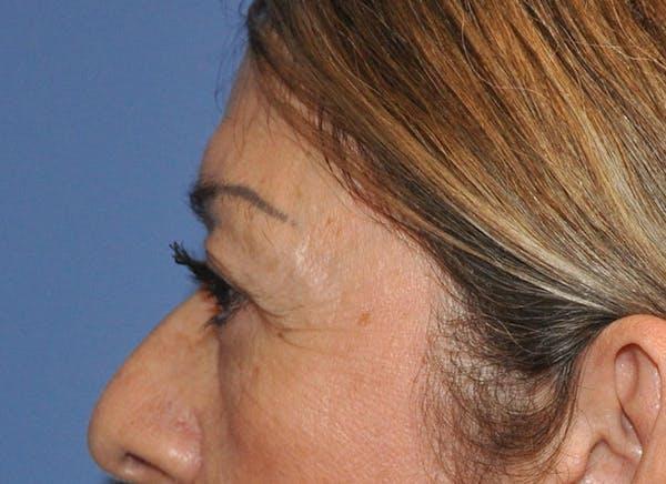 Blepharoplasty (Eyelid Surgery) Gallery - Patient 13574741 - Image 5