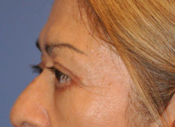 Blepharoplasty (Eyelid Surgery) Gallery - Patient 13574741 - Image 6