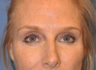 Blepharoplasty (Eyelid Surgery) Gallery - Patient 13574742 - Image 1