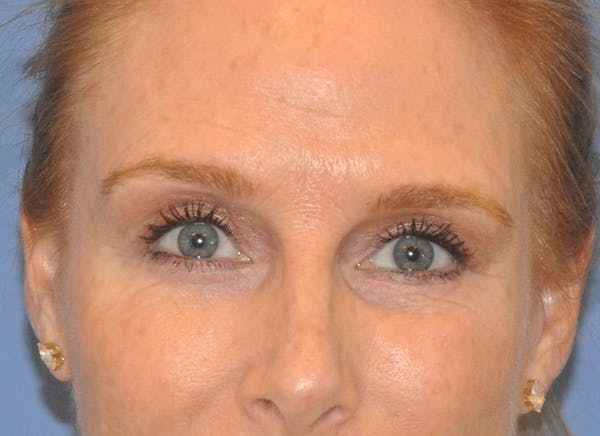 Blepharoplasty (Eyelid Surgery) Gallery - Patient 13574742 - Image 2