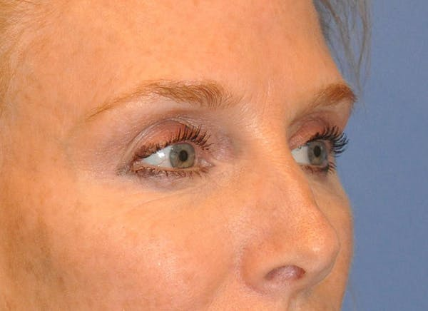 Blepharoplasty (Eyelid Surgery) Gallery - Patient 13574742 - Image 3