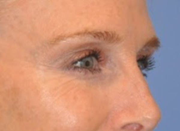 Blepharoplasty (Eyelid Surgery) Gallery - Patient 13574742 - Image 4