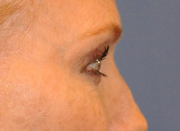 Blepharoplasty (Eyelid Surgery) Gallery - Patient 13574742 - Image 5