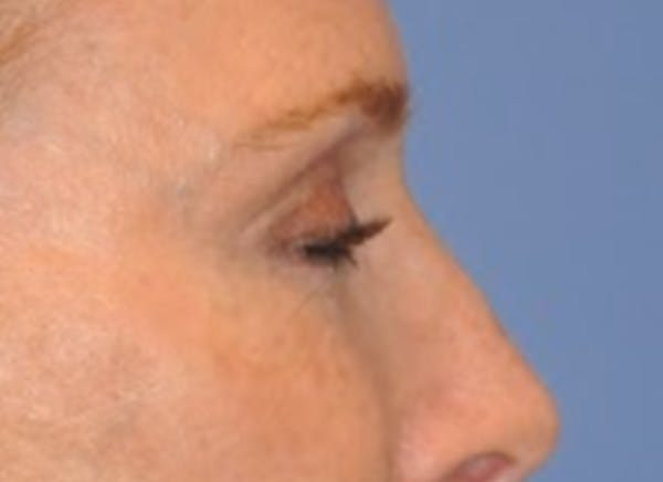 Blepharoplasty (Eyelid Surgery) Gallery - Patient 13574742 - Image 6