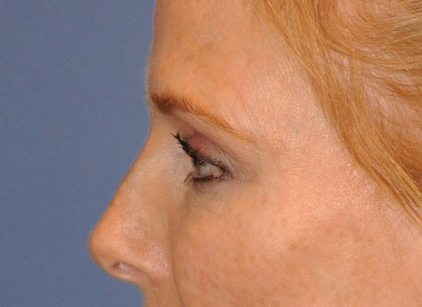 Blepharoplasty (Eyelid Surgery) Gallery - Patient 13574742 - Image 7