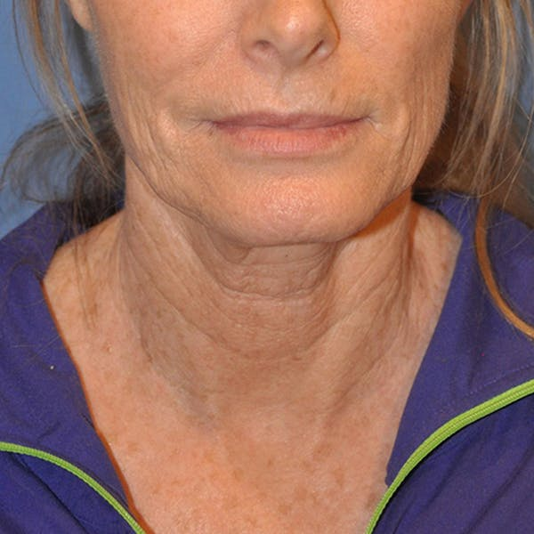 Neck Lift Gallery - Patient 13574745 - Image 1