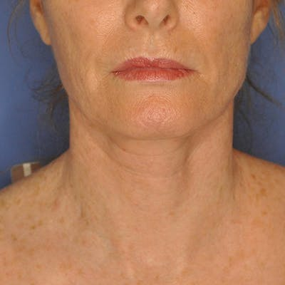 Neck Lift Gallery - Patient 13574745 - Image 2