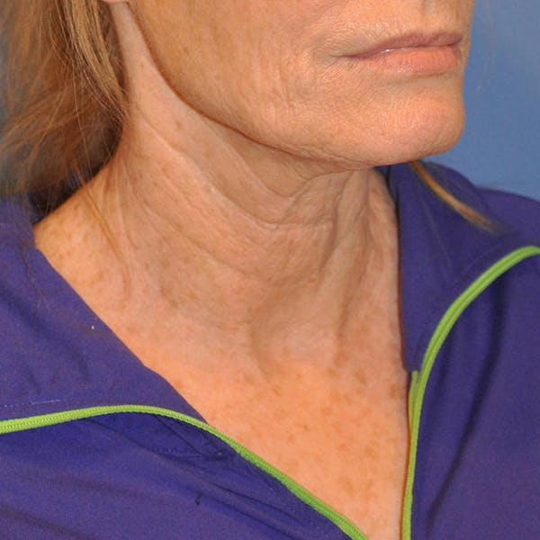 Neck Lift Gallery - Patient 13574745 - Image 3