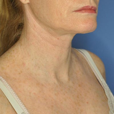 Neck Lift Gallery - Patient 13574745 - Image 4