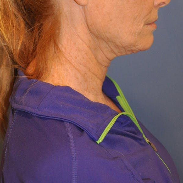 Neck Lift Gallery - Patient 13574745 - Image 5