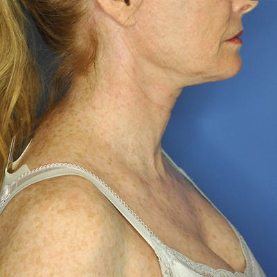 Neck Lift Gallery - Patient 13574745 - Image 6