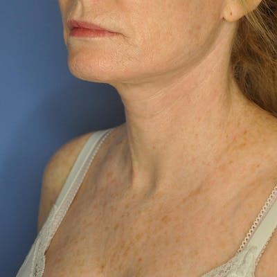 Neck Lift Gallery - Patient 13574745 - Image 8