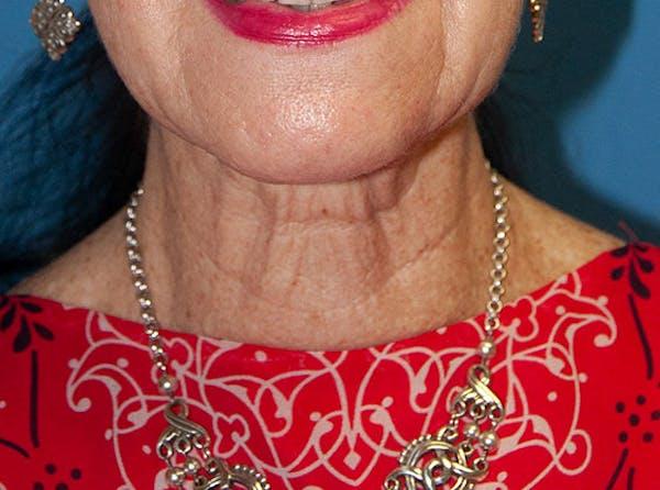 Neck Lift Gallery - Patient 13574746 - Image 1