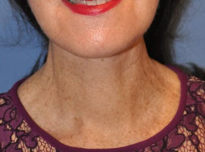 Neck Lift Gallery - Patient 13574746 - Image 2