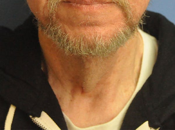 Neck Lift Gallery - Patient 13574747 - Image 1