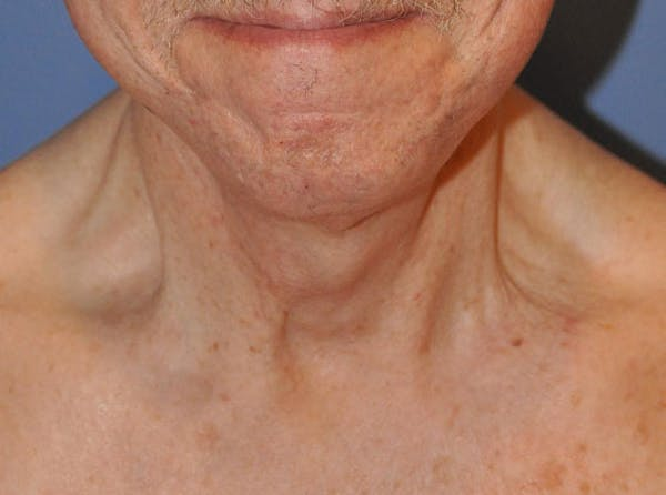 Neck Lift Gallery - Patient 13574747 - Image 2