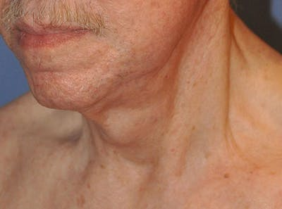 Neck Lift Gallery - Patient 13574747 - Image 4