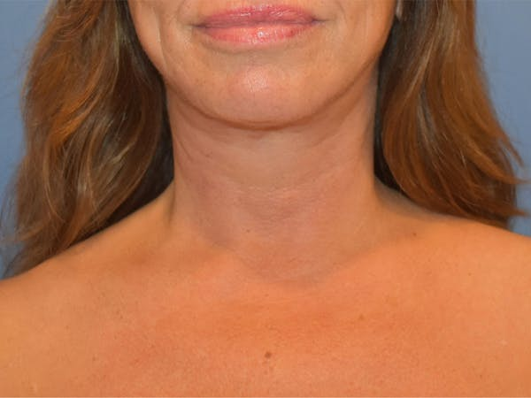Neck Lift Gallery - Patient 13574757 - Image 2