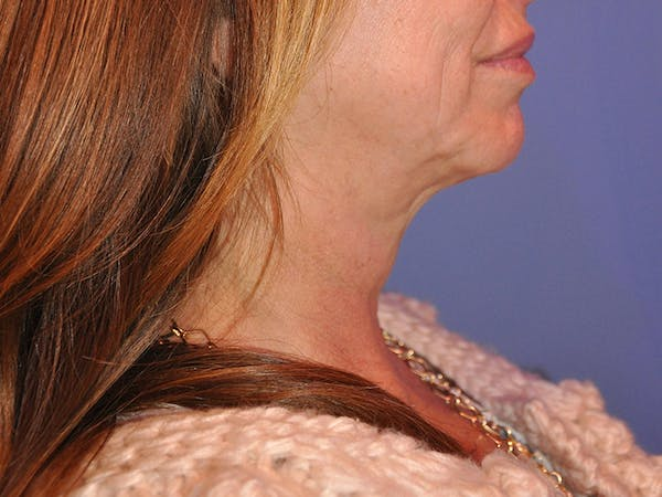 Neck Lift Gallery - Patient 13574757 - Image 3