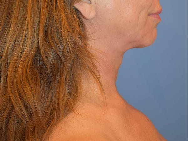 Neck Lift Gallery - Patient 13574757 - Image 4