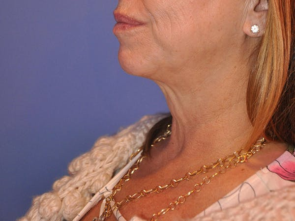 Neck Lift Gallery - Patient 13574757 - Image 5