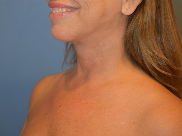 Neck Lift Gallery - Patient 13574757 - Image 6
