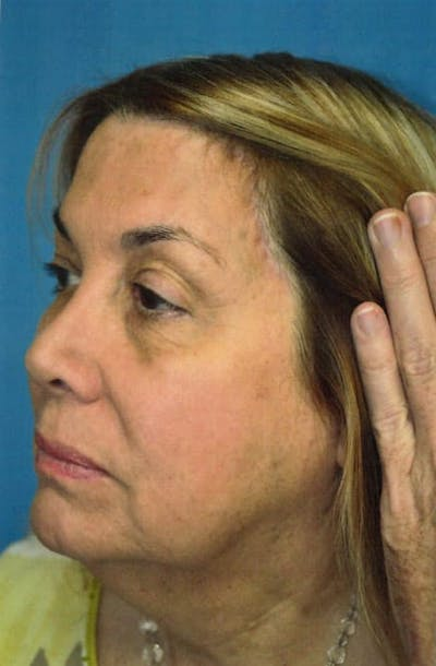 Skin Care Gallery - Patient 13574758 - Image 4