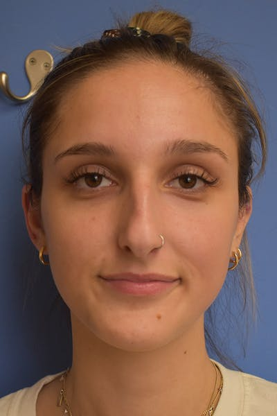 Liquid Rhinoplasty Gallery - Patient 13574760 - Image 1