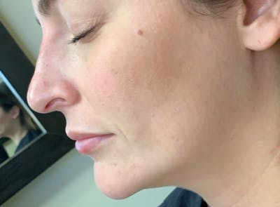 Liquid Rhinoplasty Gallery - Patient 13574761 - Image 1
