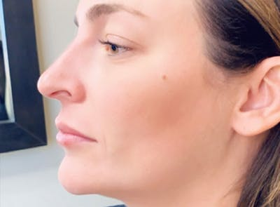 Liquid Rhinoplasty Gallery - Patient 13574761 - Image 2