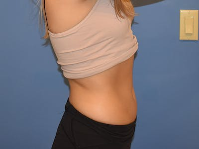 Laser Treatments Gallery - Patient 13574762 - Image 2