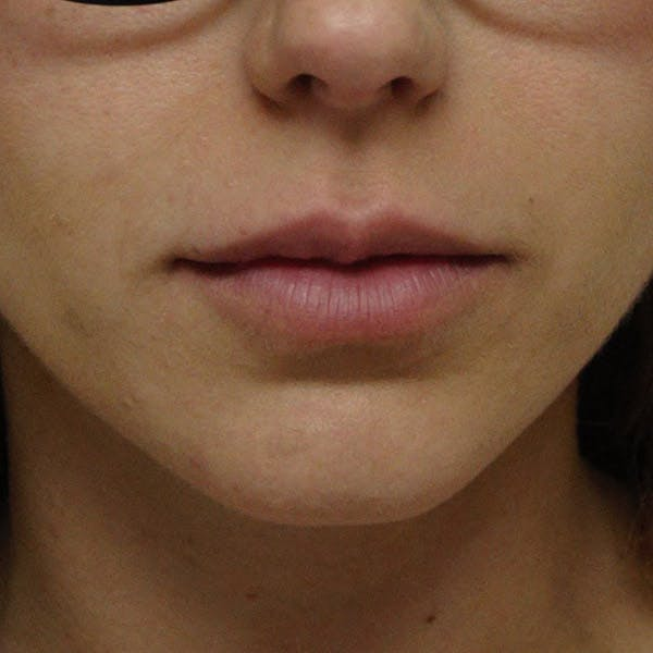 Lip Augmentation Gallery - Patient 13574765 - Image 1
